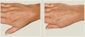 Die Alterung er Haut auf dem Handrücken